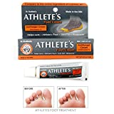 1 Pc Athletes Foot Cream Cure Skin Antifungal Fast Relief Ringworm Cures Itching